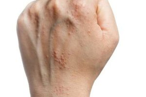 I have an itchy rash! Scabies?